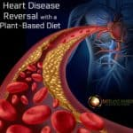 Only Diet Proven to Reverse Heart Disease