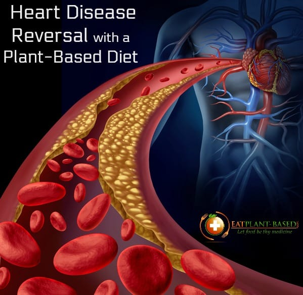 reverse heart disease diet